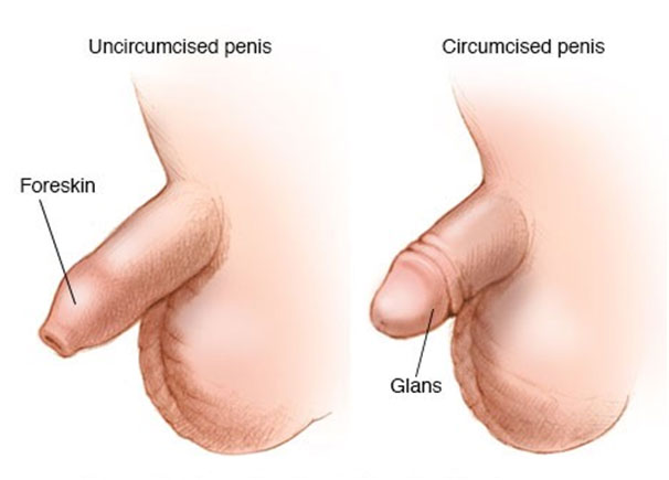 Uncircumcised and Circumcised